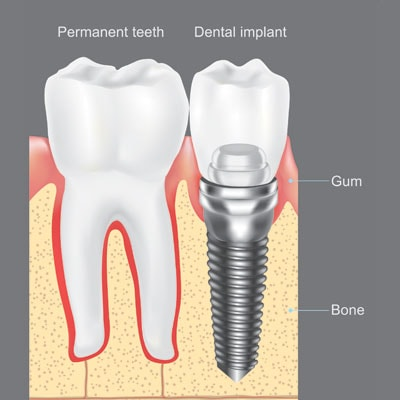 The components of dental implants compared to natural teeth