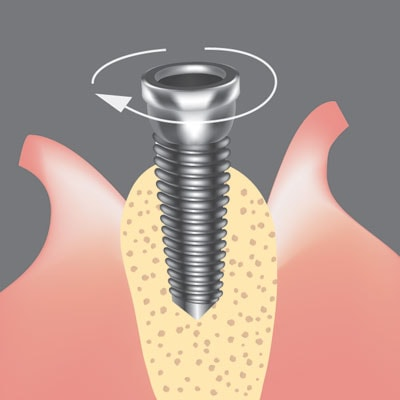 Dental implant procedure, placing the titanium post