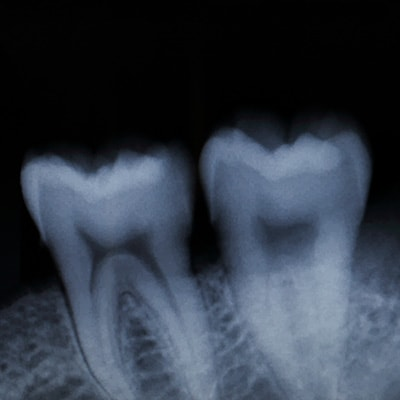 X-rays of the back molars for Osseous Surgery